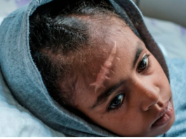 Arsema Berha, 9, rests at the Ayder Referral Hospital in the Tigray capital, Mekelle, on Feb. 25, 2021, after being injured during fighting in Ethiopia. photo credit afp